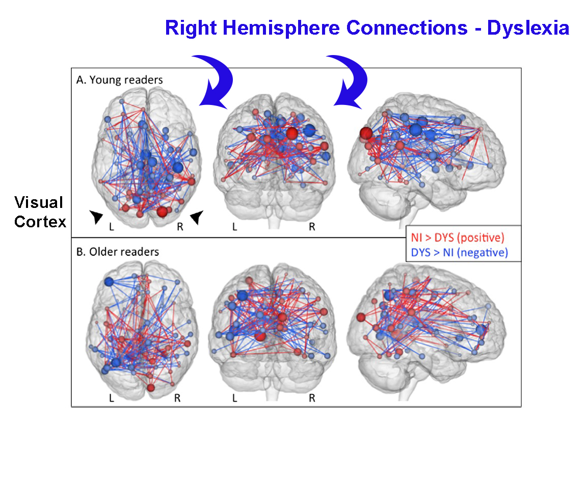 Dyslexic Differences in Brain Connectivity [Premium]